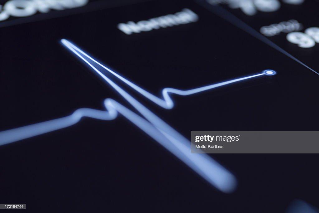 Close up of a heartbeat on a machine