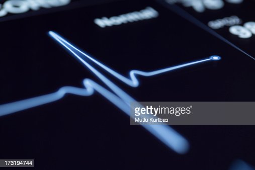 Close up of a heartbeat on a machine