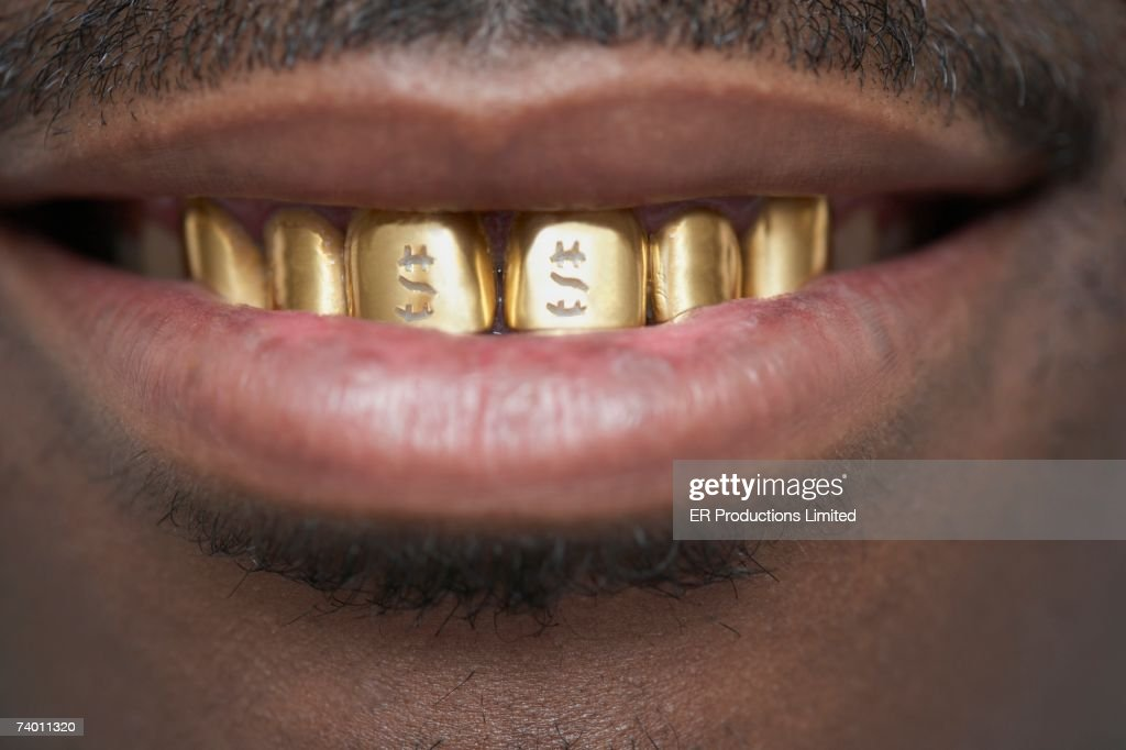 Close up of African man with gold teeth : Stock Photo