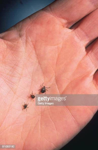 Close Up Of An Adult Female Deer Tick Dog Tick And A Lone Star Tick Are Shown June 15 2001 On The Palm Of A Hand Ticks Cause An Acute Inflammatory...