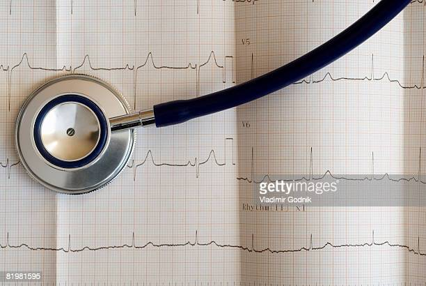 Close up of an electrocardiograph and a stethoscope