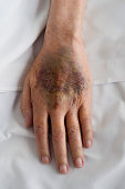 Close up of bruised skin on human hand