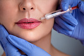 Treatment with hyaluronic collagen  injection