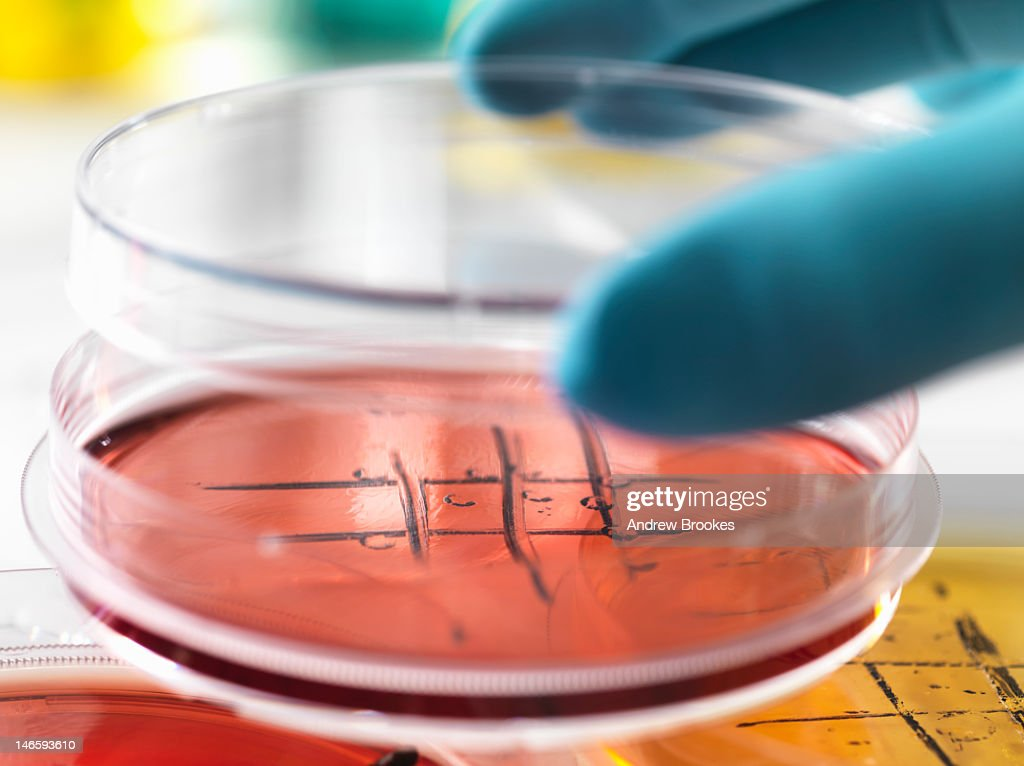 Close up of cultures in petri dishes : Stock Photo