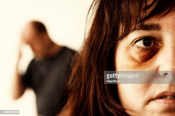 Close up of domestic abuse victim, man in background