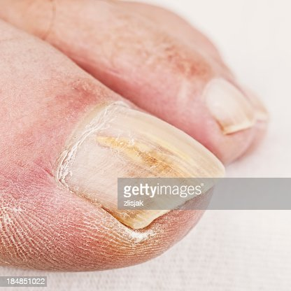Close up of dry toe with yellowed nail fungus