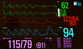 A black screened medical monitor showing a paced heart rhythm followed by sinus bradycardia in green, arterial blood pressure in red, oxygen saturation in blue, non invasive blood pressure in lavender