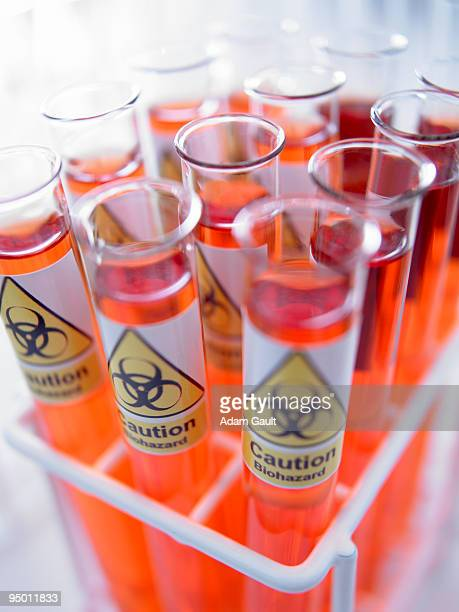 Close up of test tubes with biohazard labels