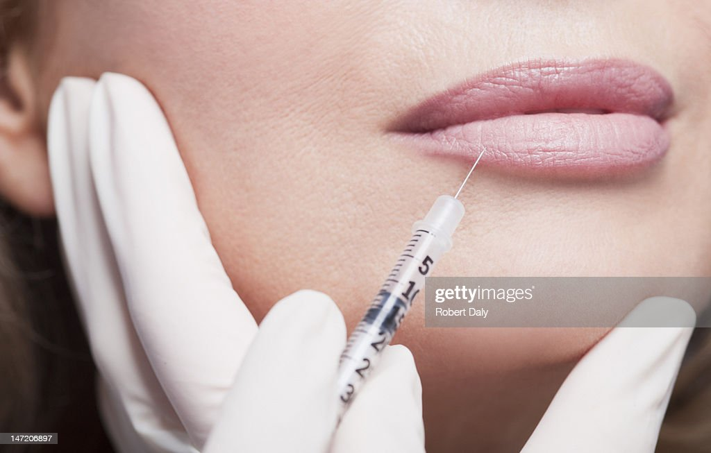 Close up of woman receiving botox injection in lips : Stock Photo