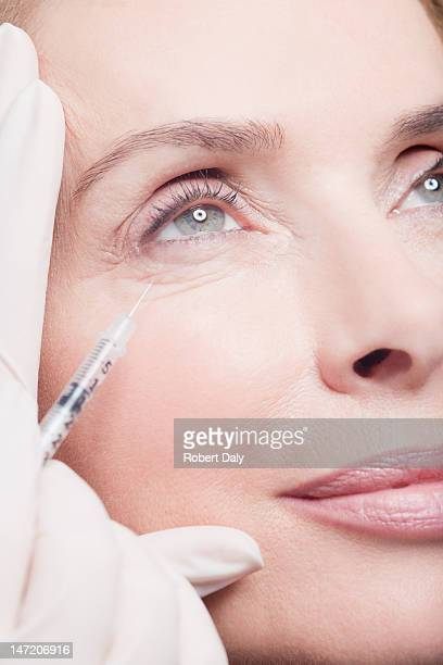 Close up of woman receiving botox injection under eye