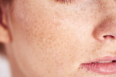Close up of woman's face with freckles