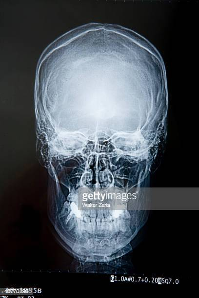 Close up of x-ray of skull