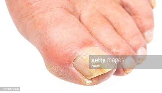 Il diviso - da unghia e il suo trattamento