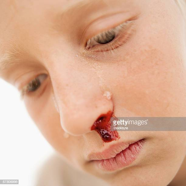 Close-up of a boy (10-12) crying with a bleeding nose