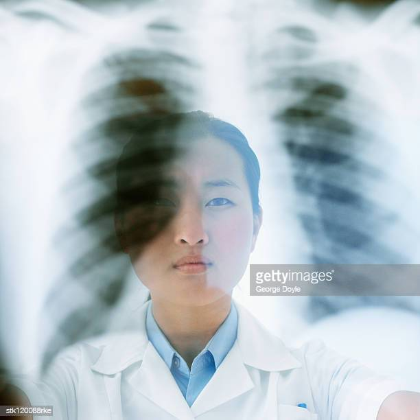 Close-up of a female medical professional holding up an x-ray