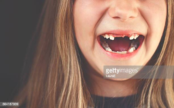 Close-up of a gap toothed girl laughing