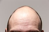 The forehead of a man