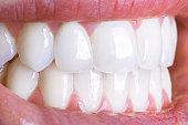 Close-up of a shiny white human teeth