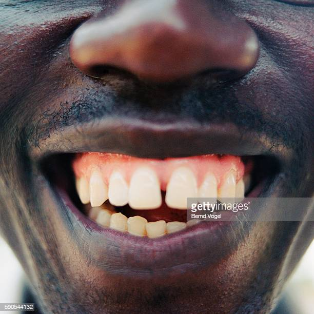 Close-up of a smiling man's teeth