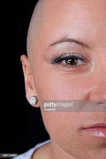 Close-up of a woman cancer survivor's face and bald head