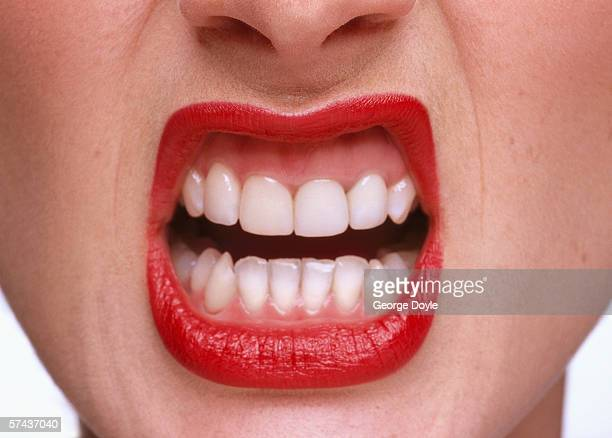 close-up of a woman exposing her teeth