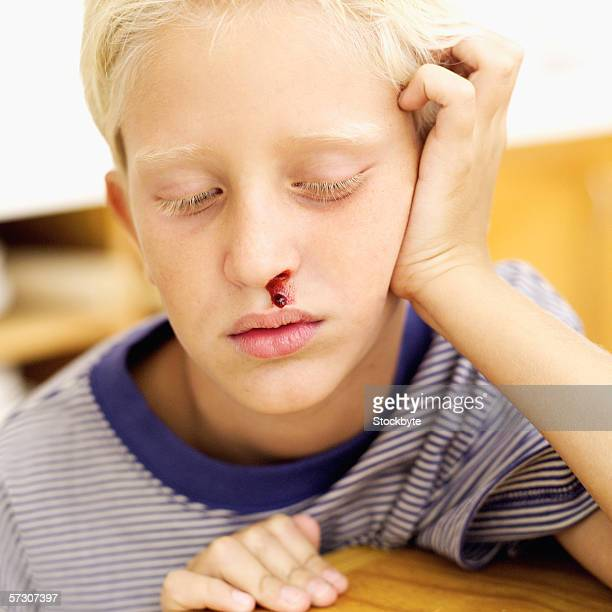 Close-up of a young boy (8-10) with a nosebleed