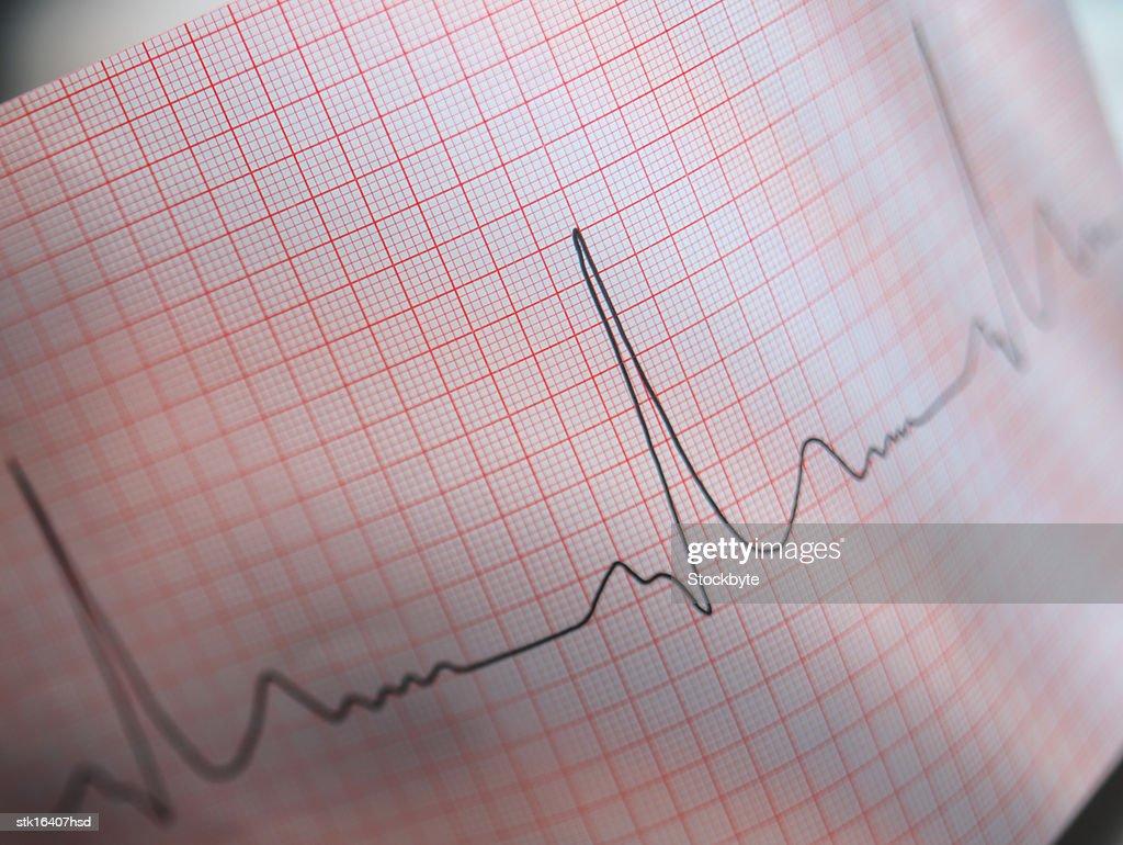 close-up of an electro cardiogram report : Stock Photo