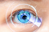 Close-up of blue eye. High Technologies in the futuristic. : cataract