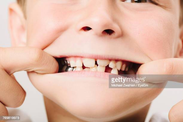 Close-Up Of Boy Showing Teeth