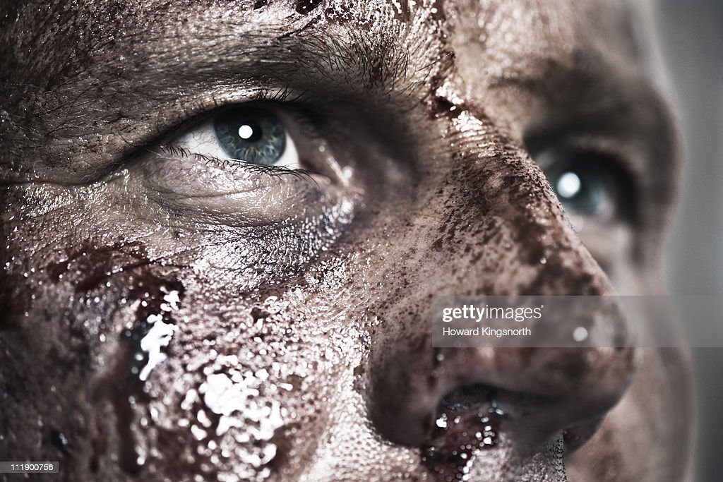 Close-up of brusied and bloody face : Stock Photo