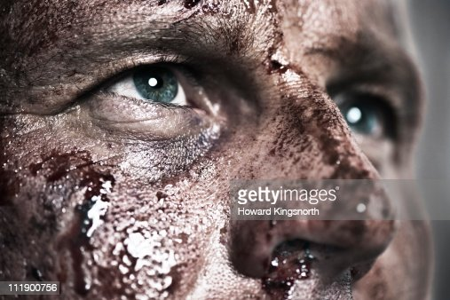 Close-up of brusied and bloody face : Foto de stock