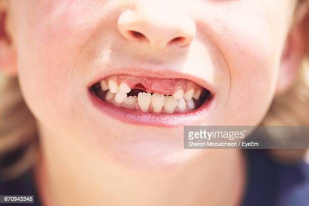 Close-Up Of Gap Toothed Boy