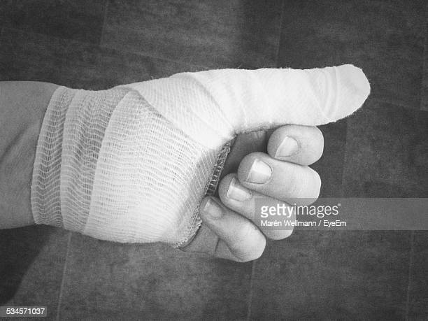 Close-Up Of Hand With Bandaged Palm And Thumb