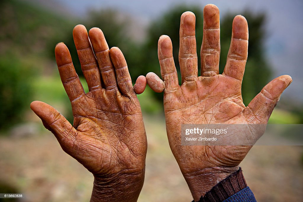 polydactyly stock photos and pictures | getty images, Skeleton