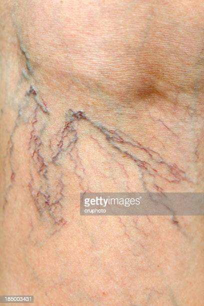 Close-up of Human Spider Veins on Leg