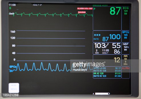 Close-up of intensive care unit monitoring screen