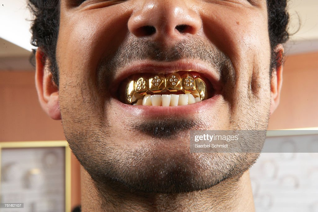 Close-up of man with gold teeth : Stock Photo