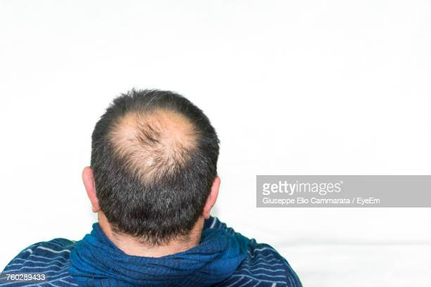 Close-Up Of Man With Receding Hairline Against White Background