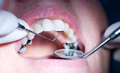 """patient having a dental examination  up, close up with narrow depth of field focus on probe"""