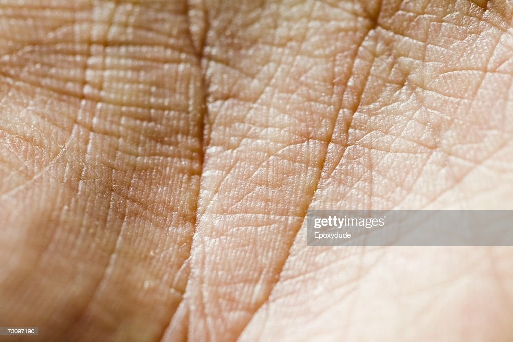 Close-up of palm of hand