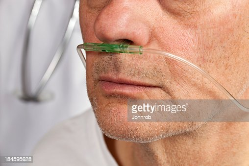 Close-up of patient's face with breathing tube in nose