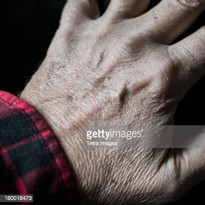 Close-up of senior's hand