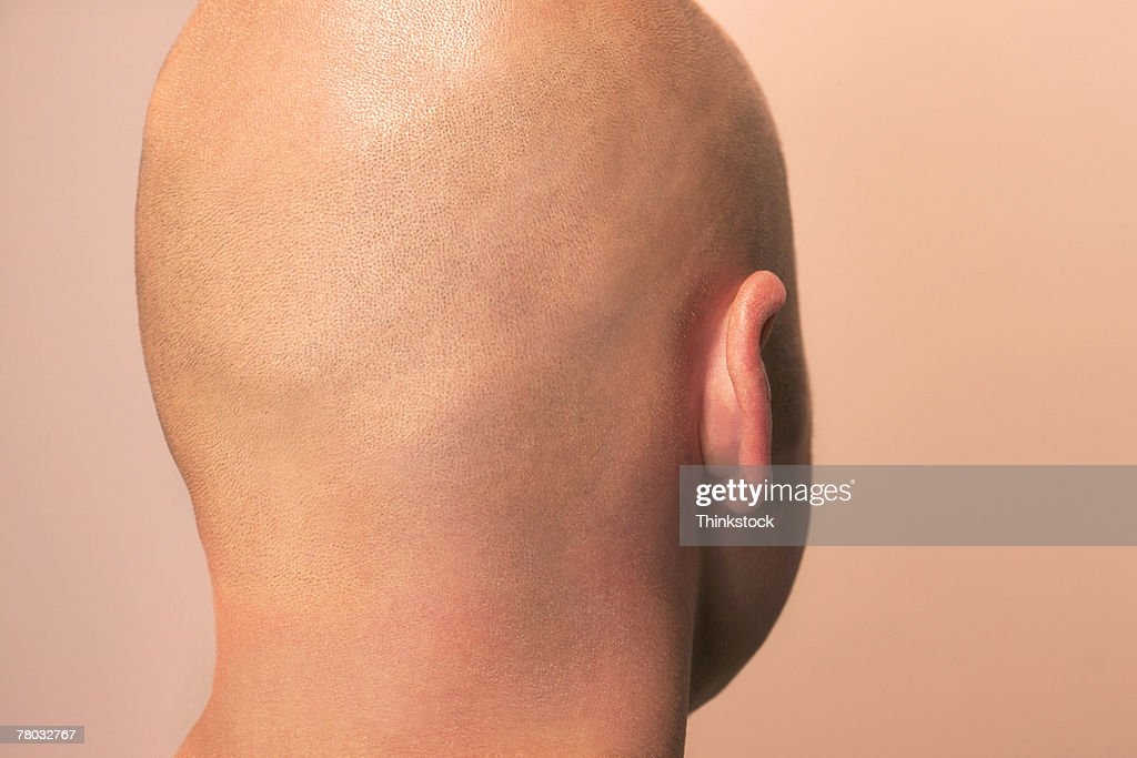 Close-up of the back of a man's bald head.