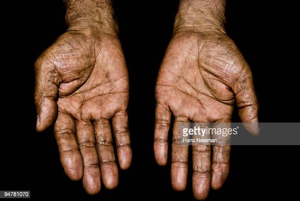 Close-up of the wrinkled hands of a person
