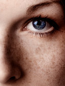 Close-Up of Woman's Blue Eye and Her Freckles Across Cheek