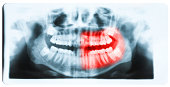 Panoramic x-ray image of teeth and mouth with all four molars vertically impacted and still not grown and visible in the jaw bone. Filled cavities visible. Teeth on the left part of the face (image ri