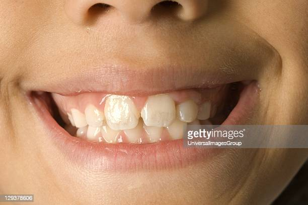 Closeup of young boy's smiling mouth