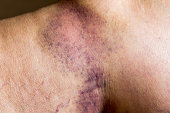 Closeup on a Bruise on wounded old woman leg skin