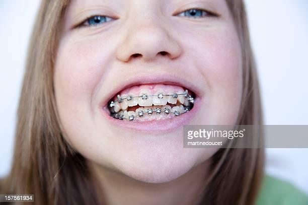 Nahaufnahme der kleine Mädchen, die Ihr Gesicht mit Zahnspange, horizontale.