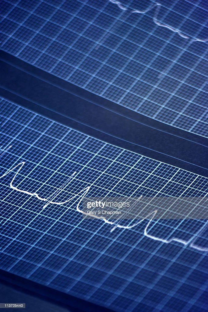 EKG closeup : Stock Photo